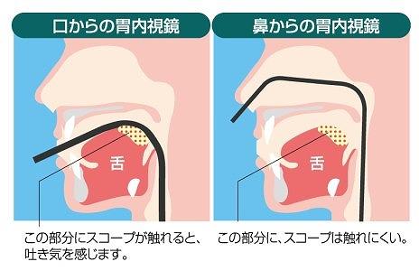 特徴2 経鼻と経口は、お好きな方をお選びいただけます